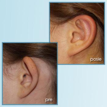 korekcija ušiju 1