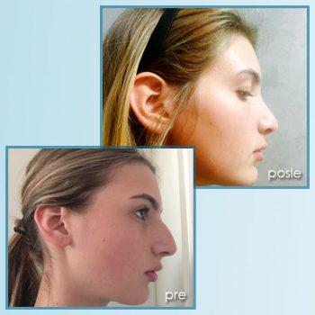 operacija nosa 1