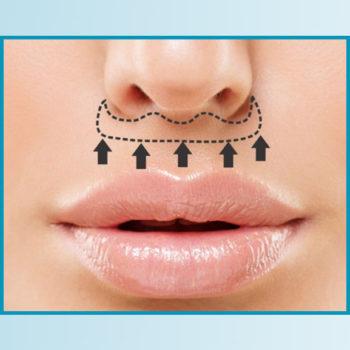 lip lift 1