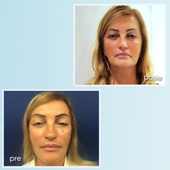 facelifting 3