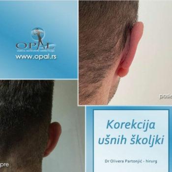 opal usi 2